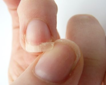 6 Steps For Fixing Cracked Or Broken Finger Nails 1